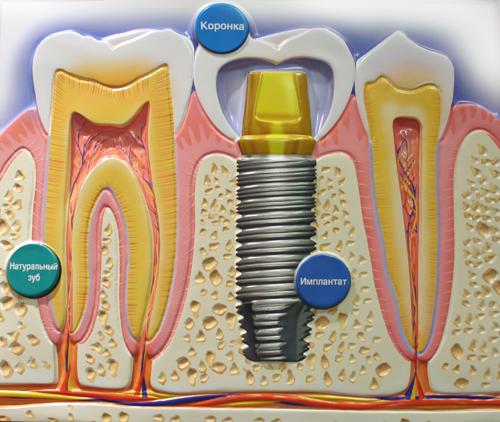 implanta.jpg
